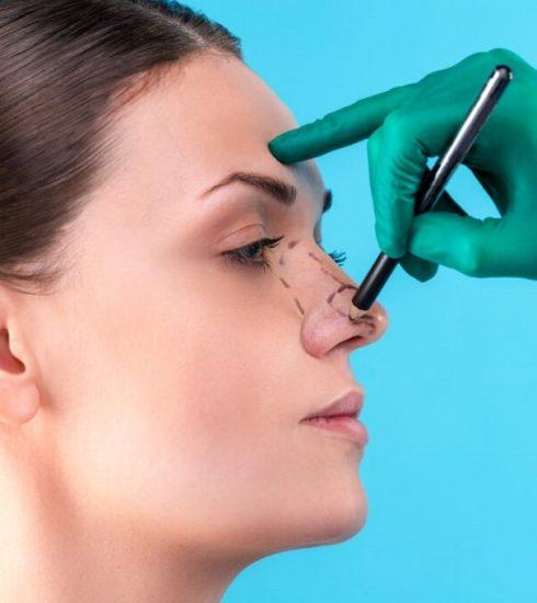 tác hại của nâng mũi