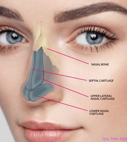 quy trình nâng mũi